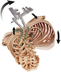vertebral-derotation2